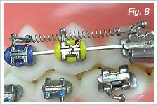 Muelles para ortodoncia