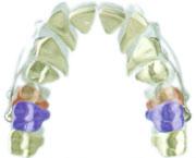 Distilizador para ortodoncia