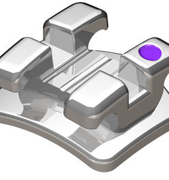 bracket metal