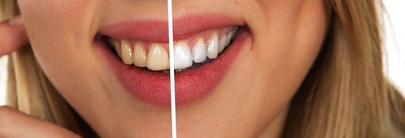 el blanqueamiento dental en clínicas profesionales