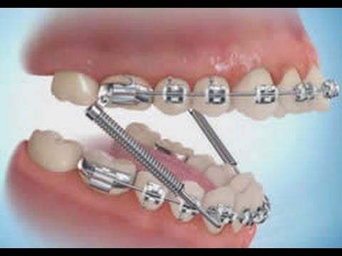 Tipos de muelles dentales